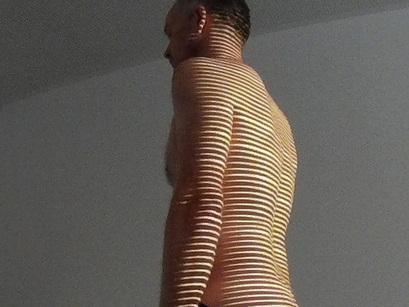 4D-Rückenoberflächen-Vermessung